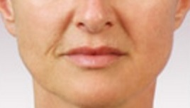 Juvederm before 01